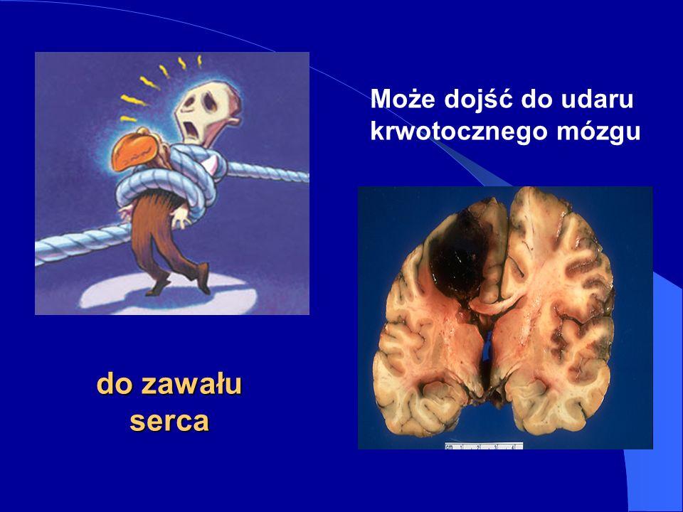Może dojść do udaru krwotocznego mózgu