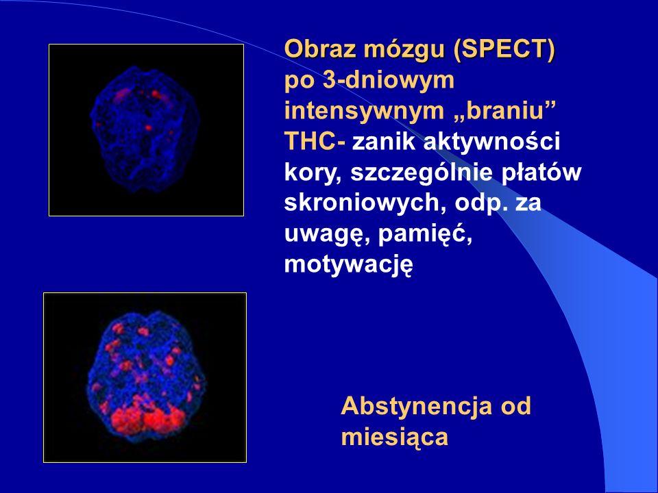 """Obraz mózgu (SPECT) po 3-dniowym intensywnym """"braniu THC- zanik aktywności kory, szczególnie płatów skroniowych, odp. za uwagę, pamięć, motywację."""