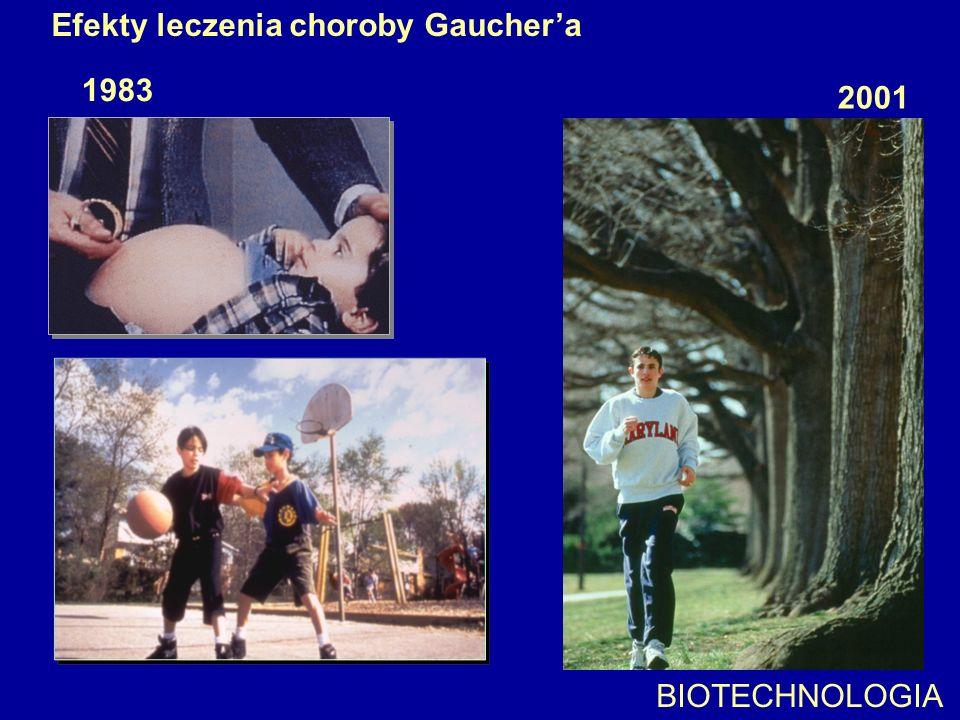 Efekty leczenia choroby Gaucher'a