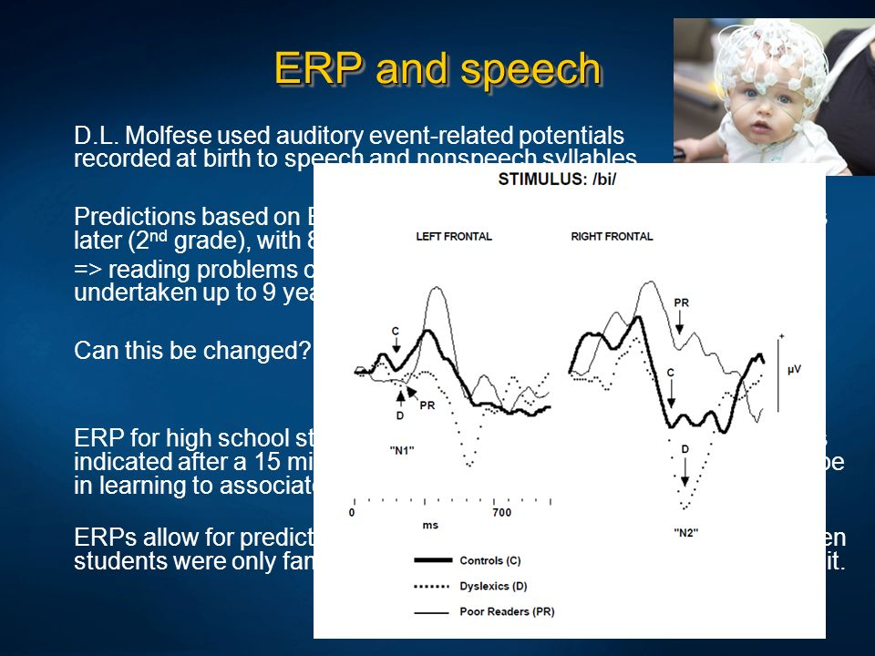 ERP and speech D.L. Molfese used auditory event-related potentials recorded at birth to speech and nonspeech syllables.