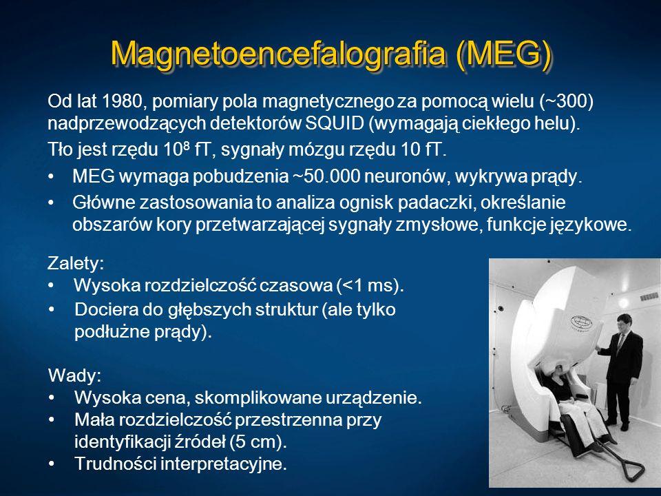 Magnetoencefalografia (MEG)