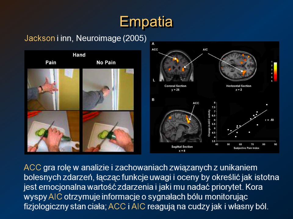 Empatia Jackson i inn, Neuroimage (2005)