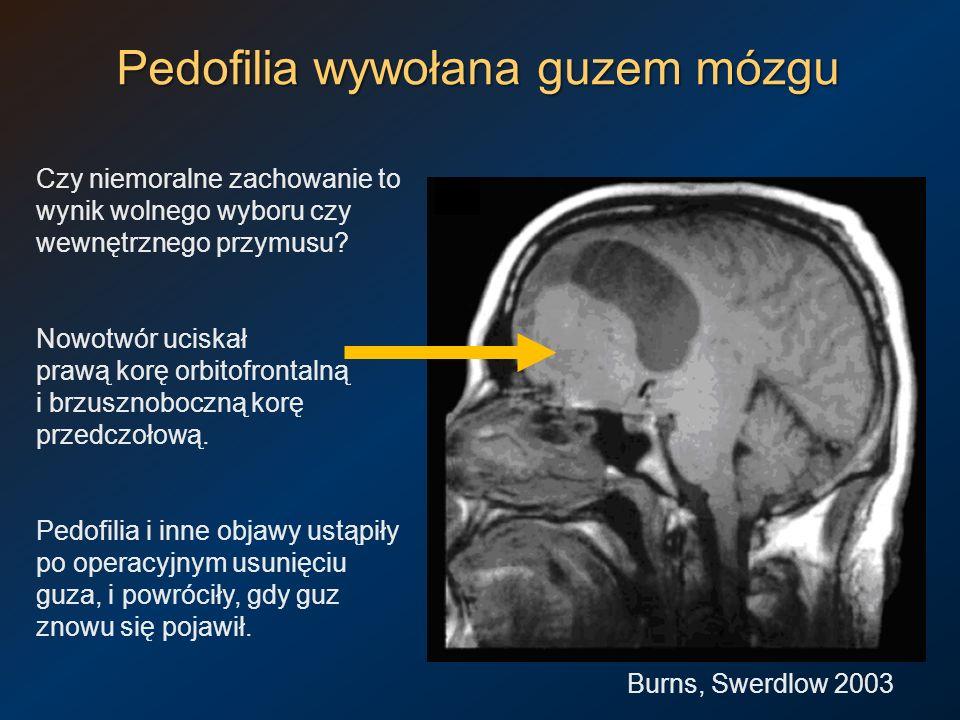 Pedofilia wywołana guzem mózgu