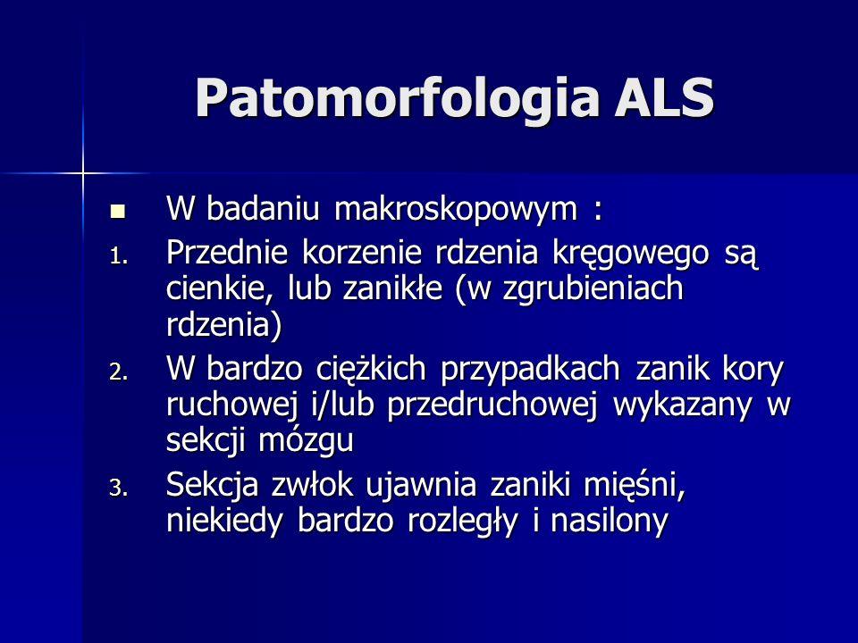 Patomorfologia ALS W badaniu makroskopowym :