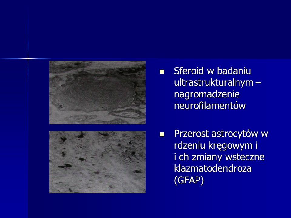 Sferoid w badaniu ultrastrukturalnym – nagromadzenie neurofilamentów