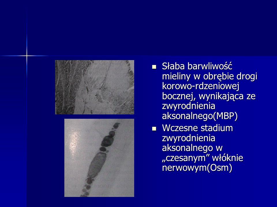 Słaba barwliwość mieliny w obrębie drogi korowo-rdzeniowej bocznej, wynikająca ze zwyrodnienia aksonalnego(MBP)