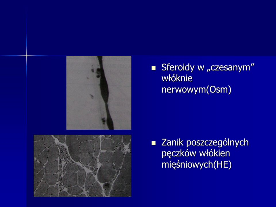"""Sferoidy w """"czesanym włóknie nerwowym(Osm)"""