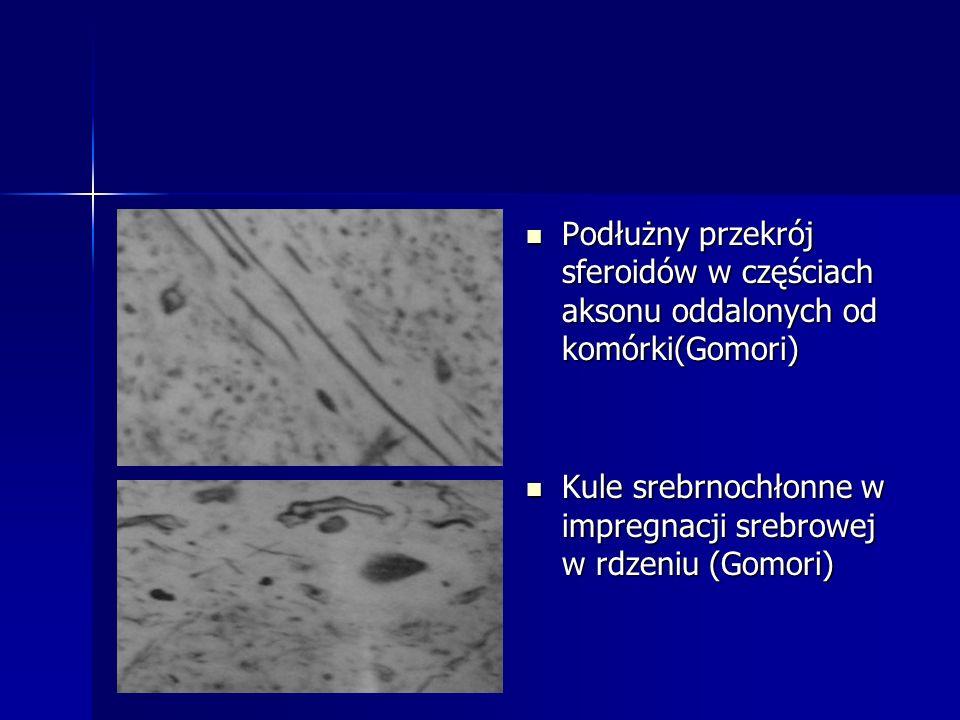 Podłużny przekrój sferoidów w częściach aksonu oddalonych od komórki(Gomori)