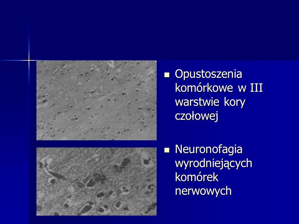Opustoszenia komórkowe w III warstwie kory czołowej