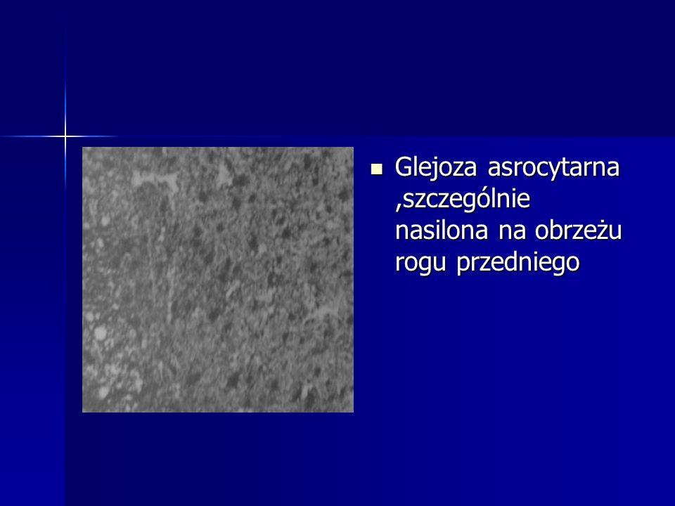 Glejoza asrocytarna ,szczególnie nasilona na obrzeżu rogu przedniego