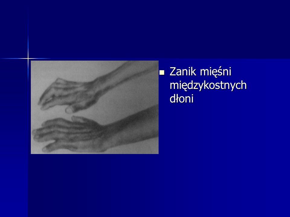 Zanik mięśni międzykostnych dłoni