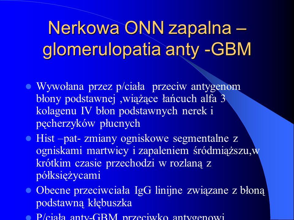 Nerkowa ONN zapalna –glomerulopatia anty -GBM