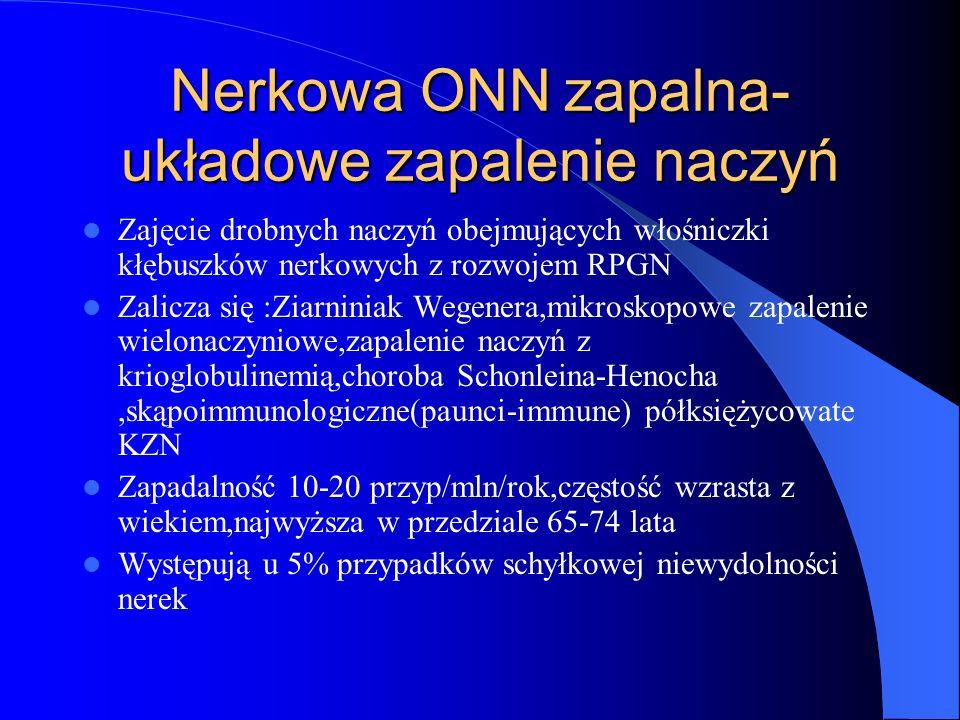 Nerkowa ONN zapalna- układowe zapalenie naczyń