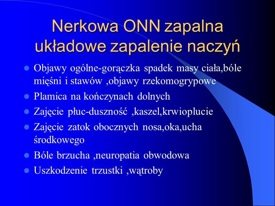 Nerkowa ONN zapalna układowe zapalenie naczyń