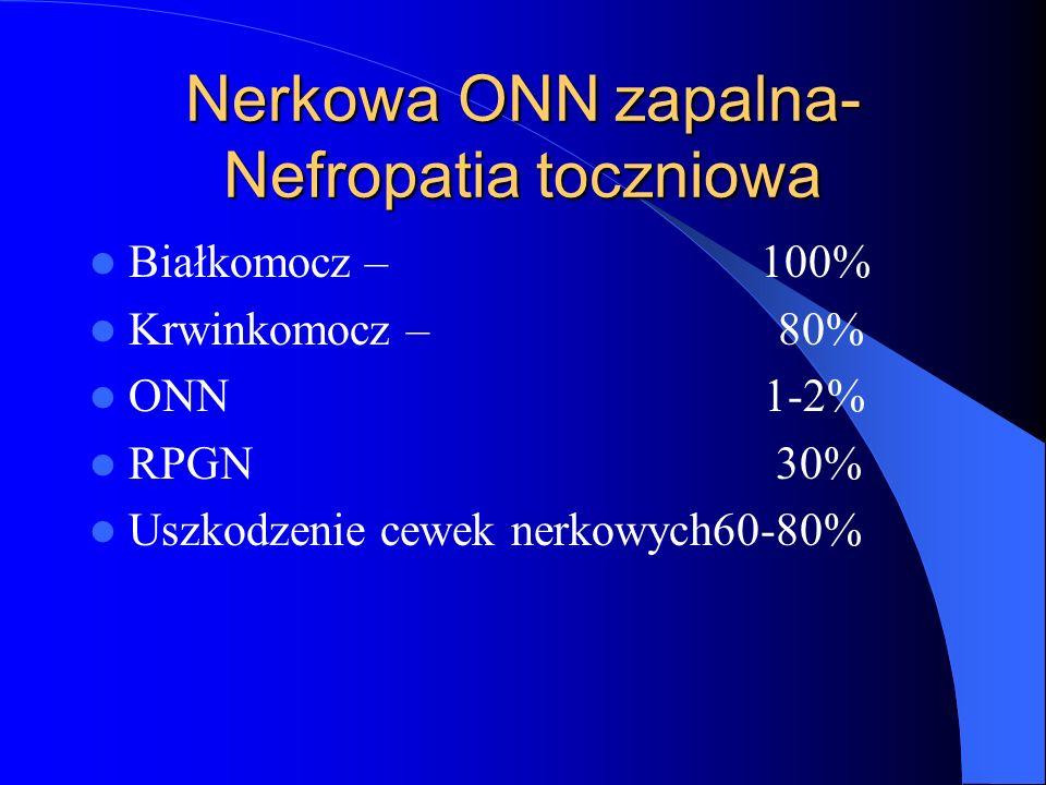 Nerkowa ONN zapalna-Nefropatia toczniowa