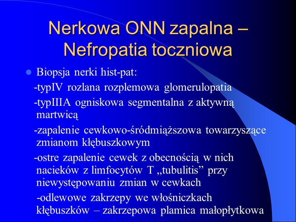Nerkowa ONN zapalna –Nefropatia toczniowa