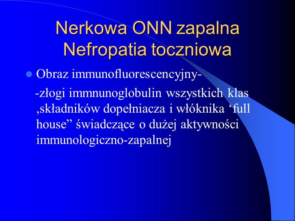 Nerkowa ONN zapalna Nefropatia toczniowa