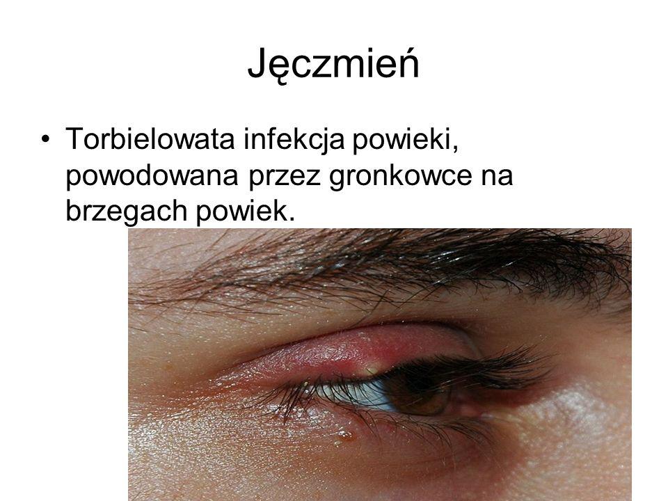 Jęczmień Torbielowata infekcja powieki, powodowana przez gronkowce na brzegach powiek.