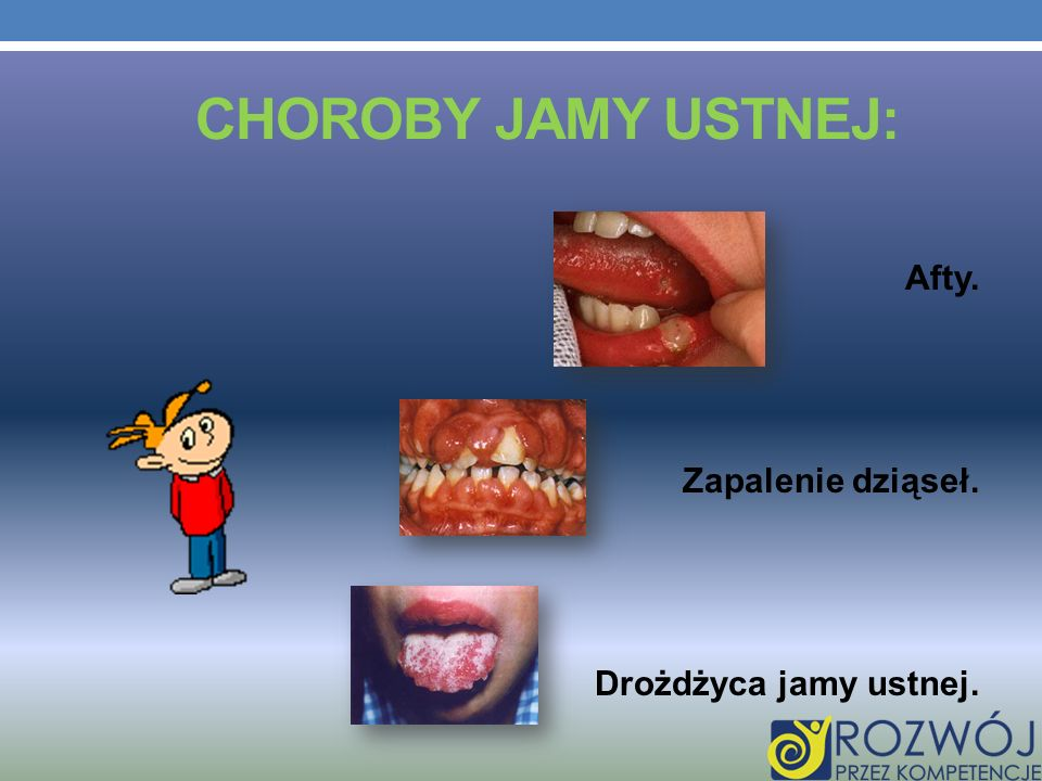 Choroby jamy ustnej: Afty. Zapalenie dziąseł. Drożdżyca jamy ustnej.