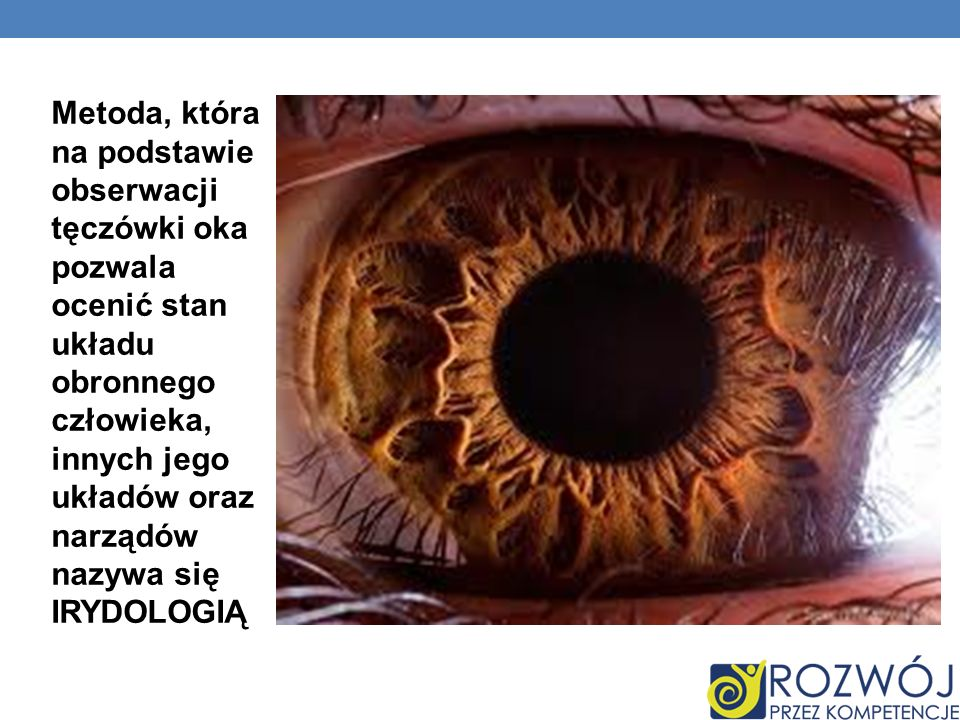 Metoda, która na podstawie obserwacji tęczówki oka pozwala ocenić stan układu obronnego człowieka, innych jego układów oraz narządów nazywa się IRYDOLOGIĄ