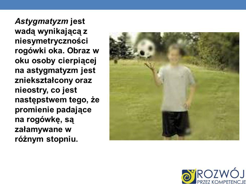 Astygmatyzm jest wadą wynikającą z niesymetryczności rogówki oka