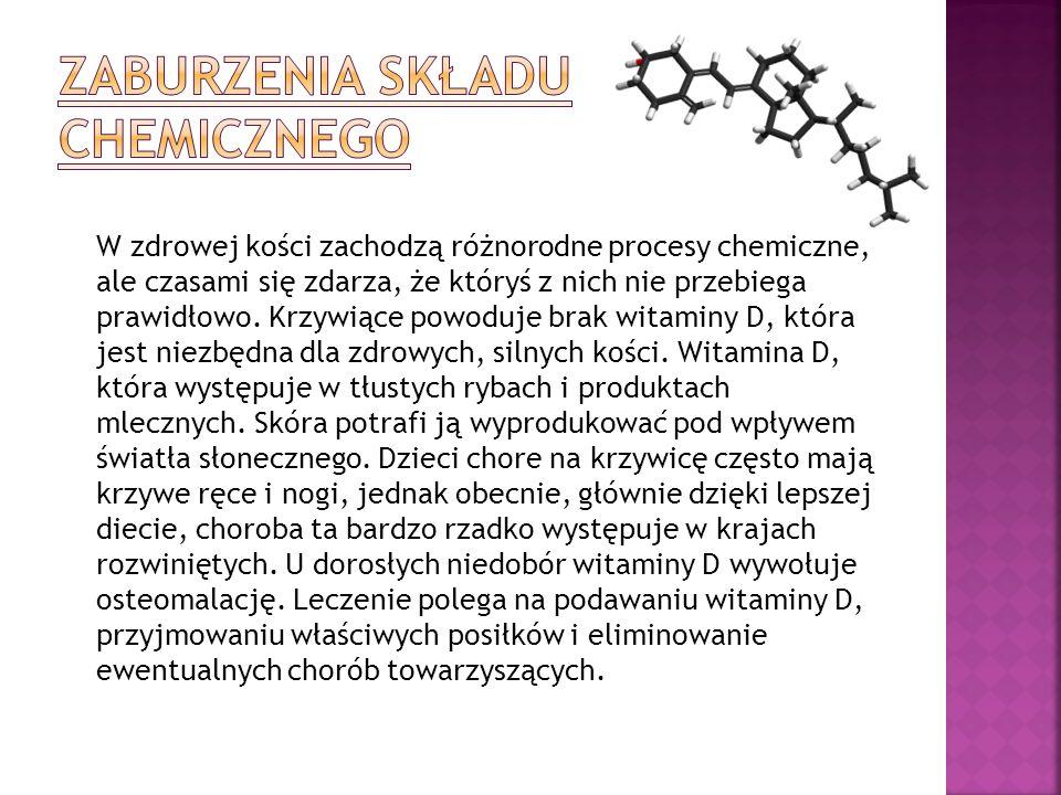 Zaburzenia składu chemicznego