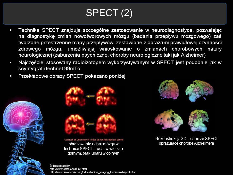 Rekonstrukcja 3D – dane ze SPECT obrazujące chorobę Alzheimera