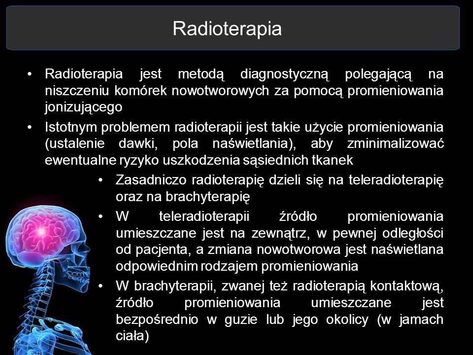Radioterapia Radioterapia jest metodą diagnostyczną polegającą na niszczeniu komórek nowotworowych za pomocą promieniowania jonizującego.