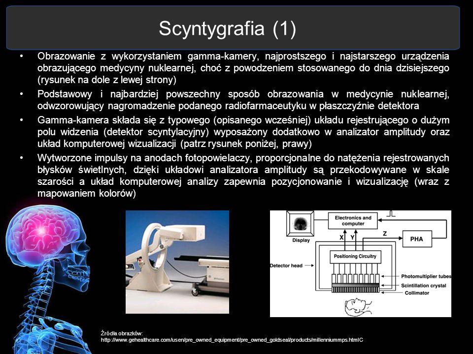 Scyntygrafia (1)