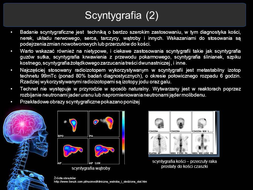 scyntygrafia kości – przerzuty raka prostaty do kości czaszki