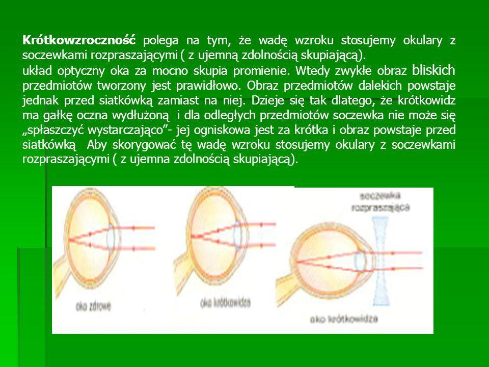 Krótkowzroczność polega na tym, że wadę wzroku stosujemy okulary z soczewkami rozpraszającymi ( z ujemną zdolnością skupiającą).