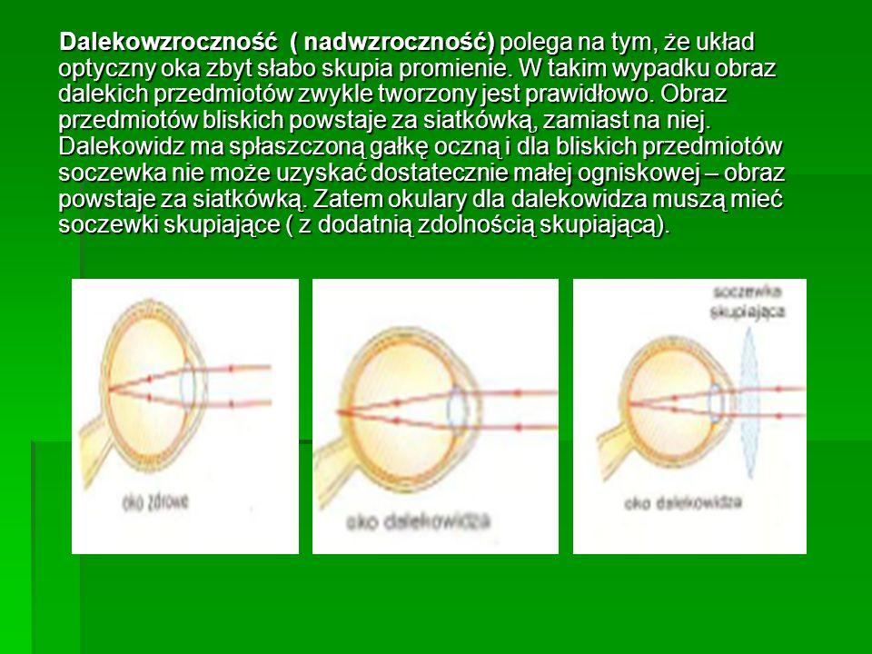 Dalekowzroczność ( nadwzroczność) polega na tym, że układ optyczny oka zbyt słabo skupia promienie.