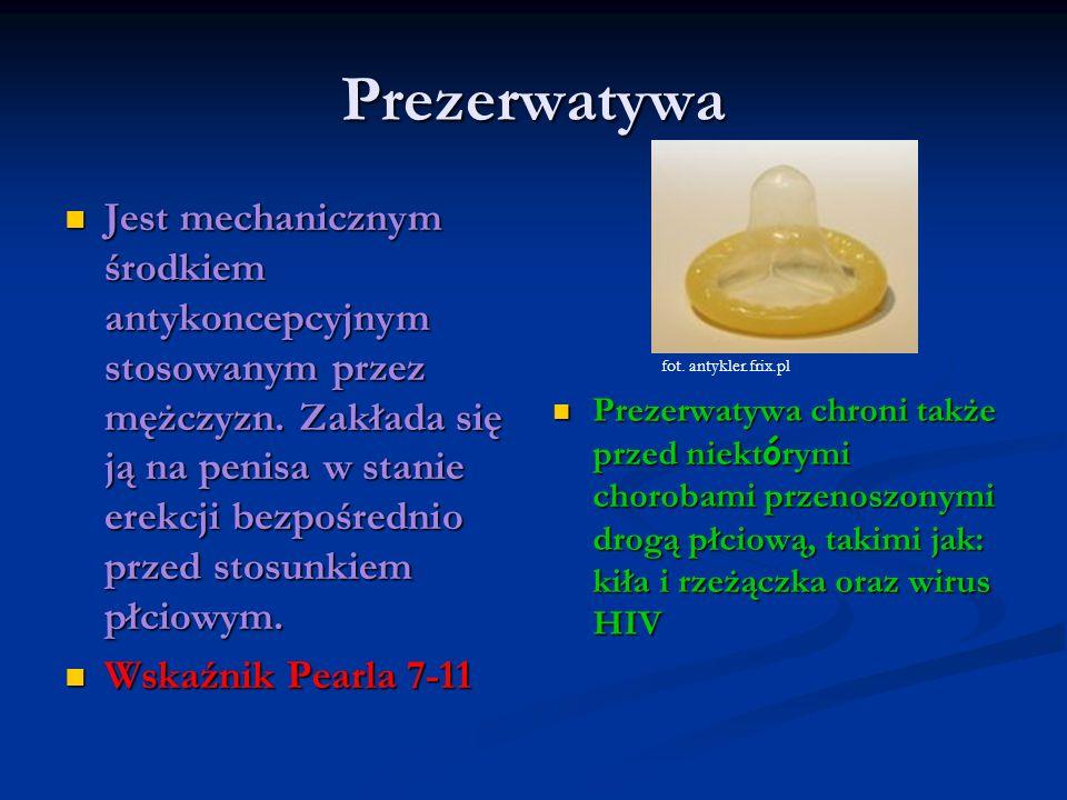 Prezerwatywa
