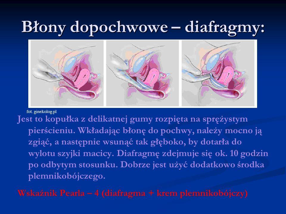 Błony dopochwowe – diafragmy: