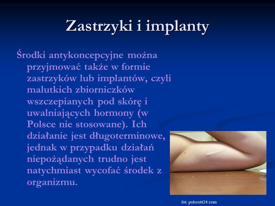Zastrzyki i implanty