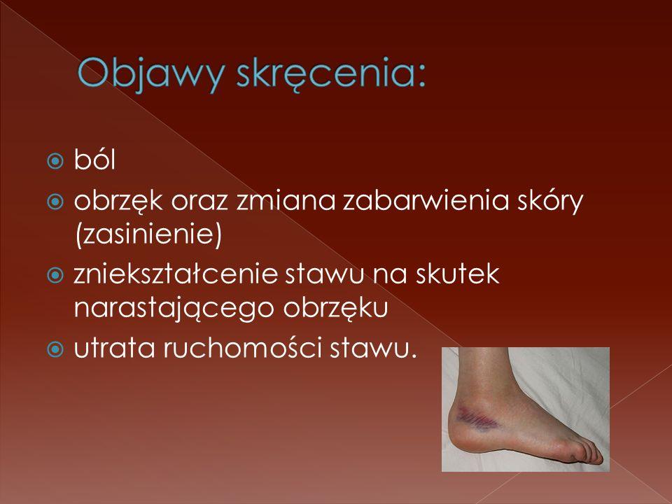 Objawy skręcenia: ból. obrzęk oraz zmiana zabarwienia skóry (zasinienie) zniekształcenie stawu na skutek narastającego obrzęku.
