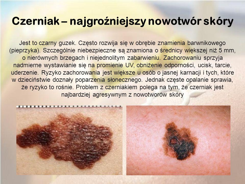 Czerniak – najgroźniejszy nowotwór skóry