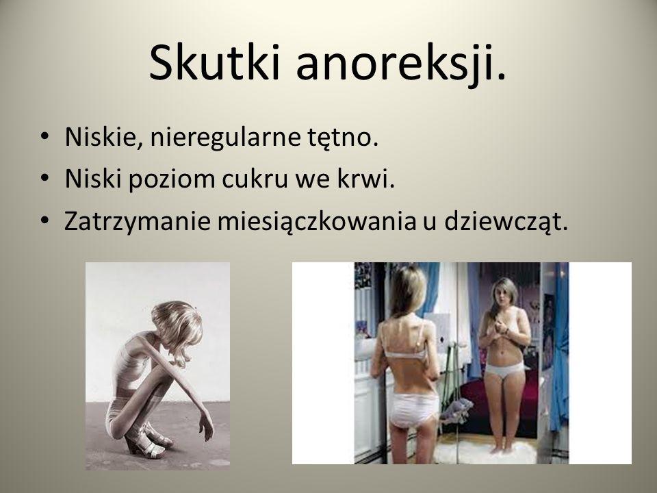 Skutki anoreksji. Niskie, nieregularne tętno.