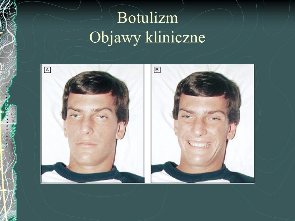 Botulizm Objawy kliniczne