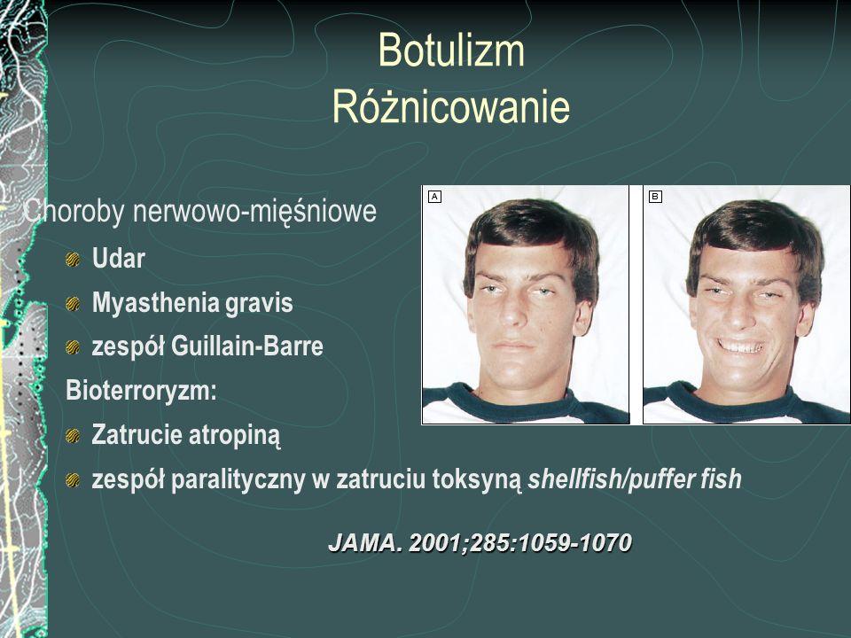 Botulizm Różnicowanie