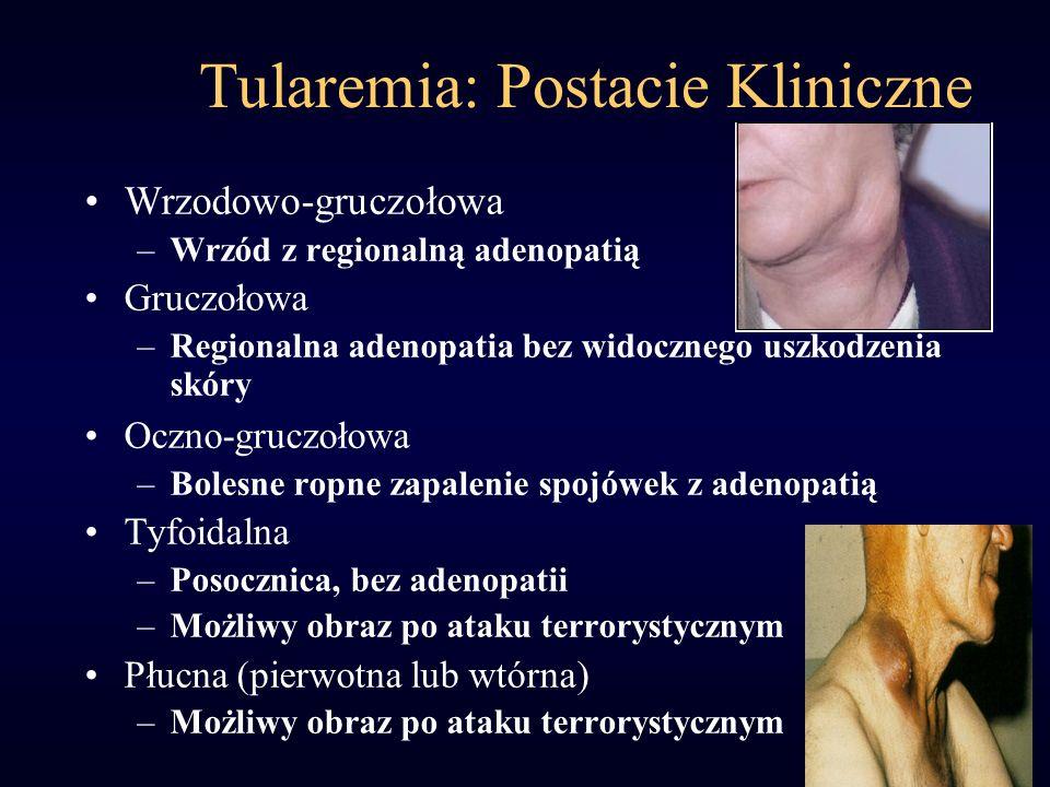 Tularemia: Postacie Kliniczne