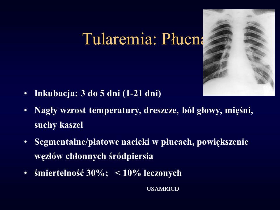 Tularemia: Płucna Inkubacja: 3 do 5 dni (1-21 dni)