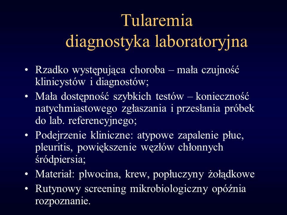 Tularemia diagnostyka laboratoryjna