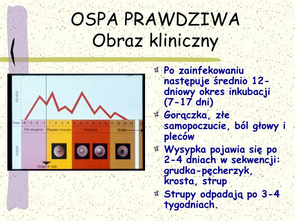 OSPA PRAWDZIWA Obraz kliniczny