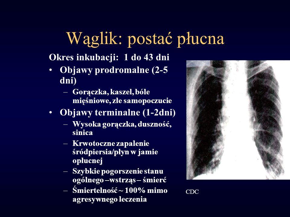 Wąglik: postać płucna Okres inkubacji: 1 do 43 dni