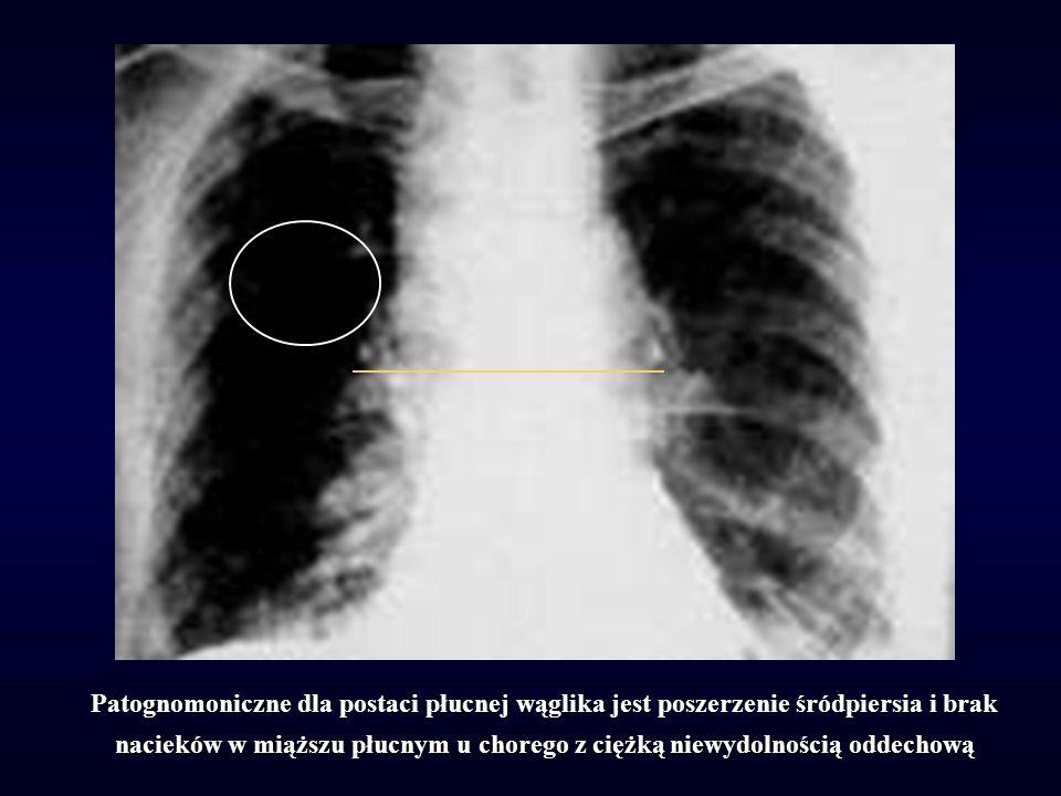 Patognomoniczne dla postaci płucnej wąglika jest poszerzenie śródpiersia i brak nacieków w miąższu płucnym u chorego z ciężką niewydolnością oddechową
