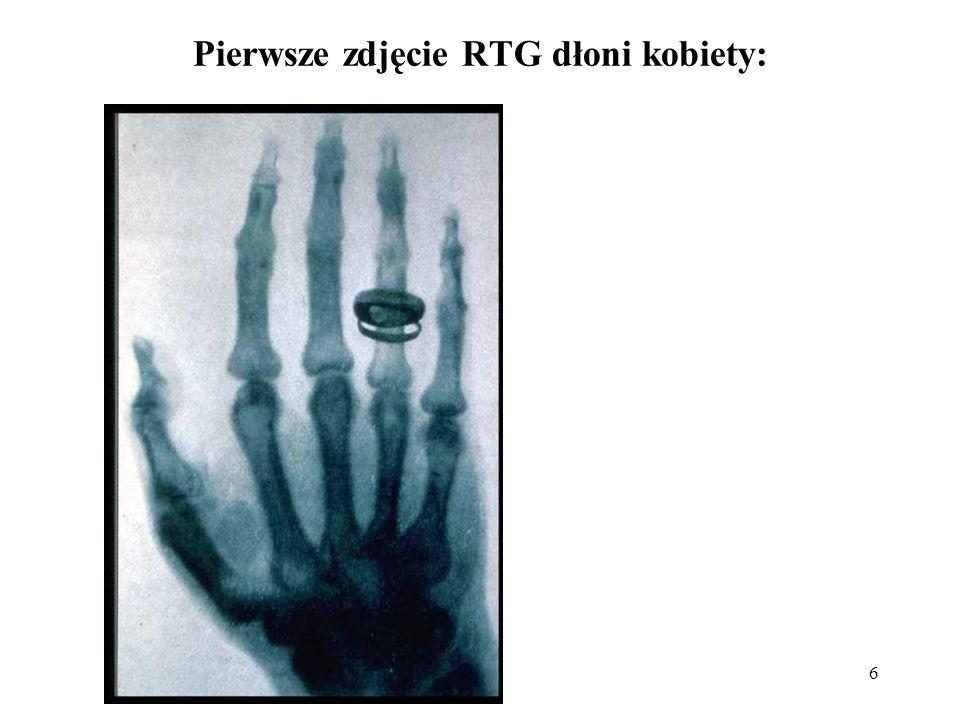 Pierwsze zdjęcie RTG dłoni kobiety: