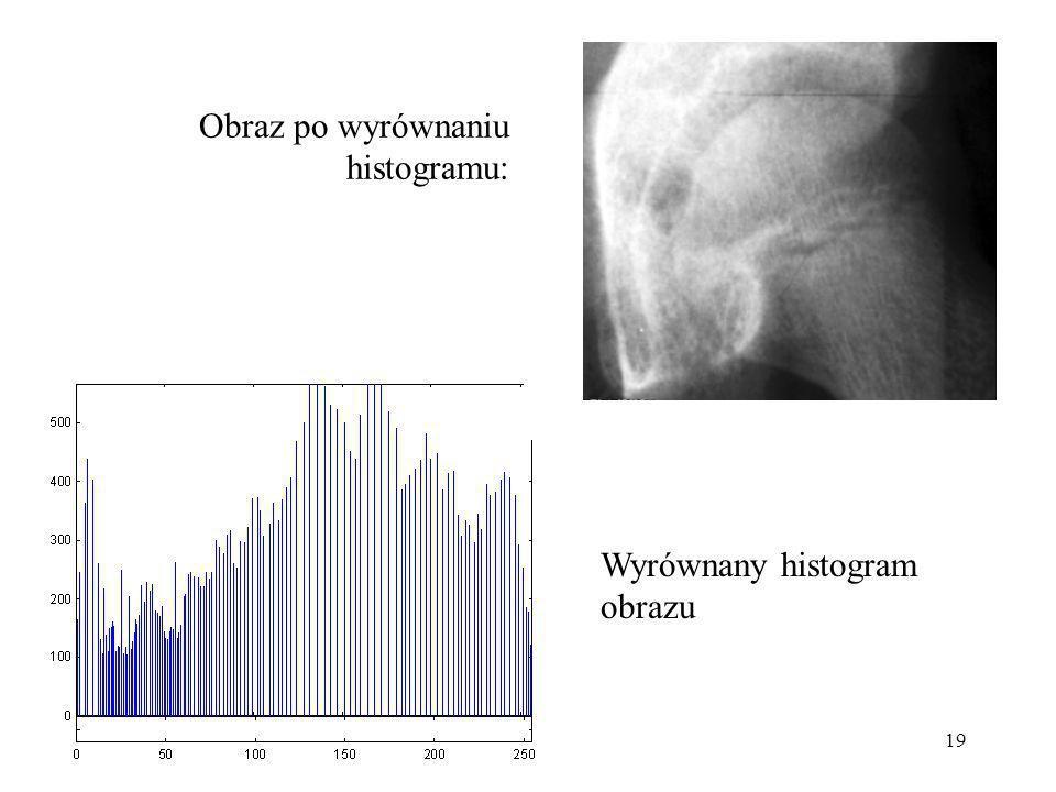 Obraz po wyrównaniu histogramu: