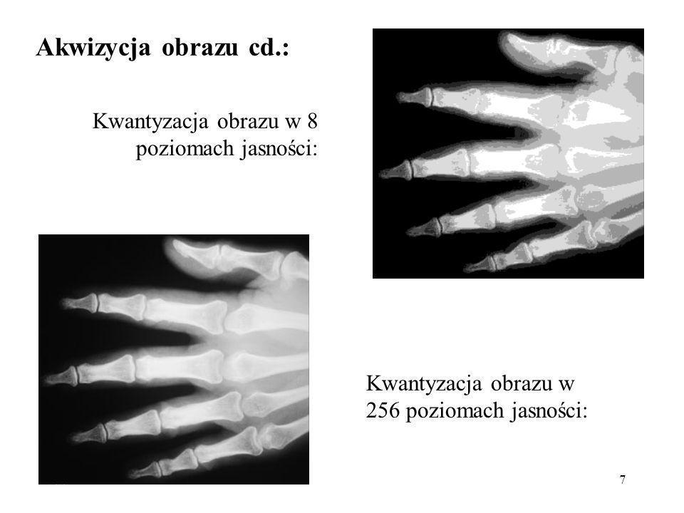 Akwizycja obrazu cd.: Kwantyzacja obrazu w 8 poziomach jasności: