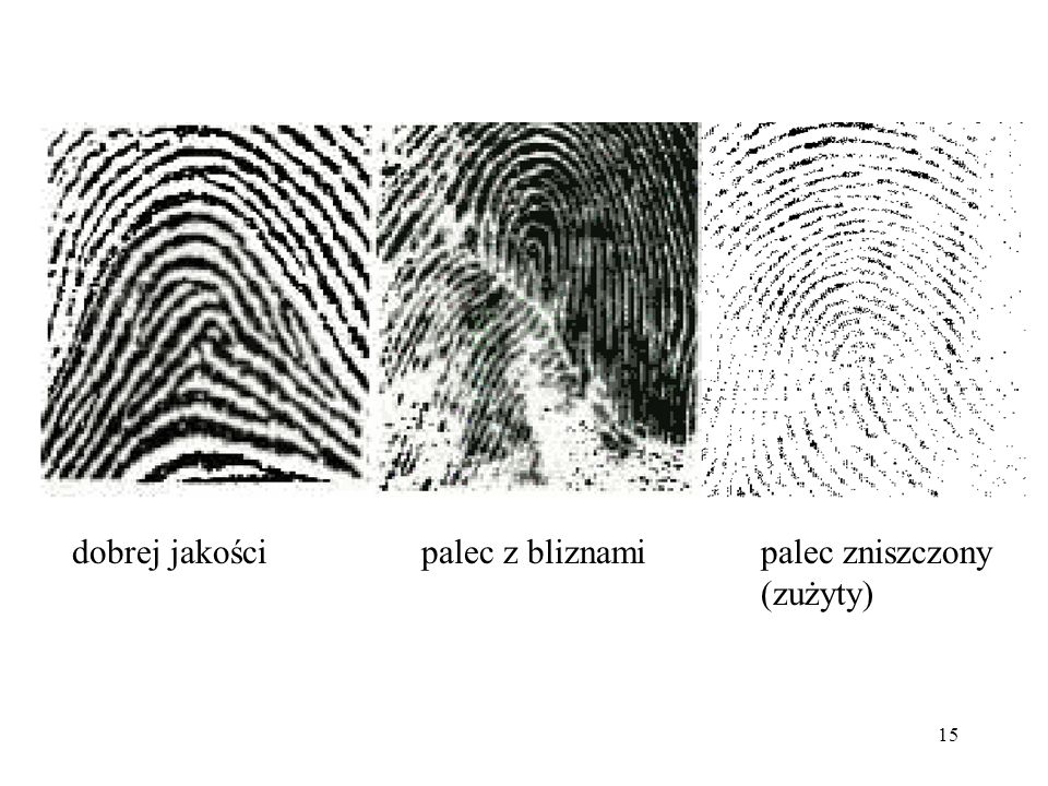 dobrej jakości palec z bliznami palec zniszczony (zużyty)